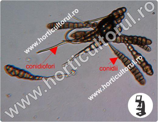 Alternarioza cartofului-Alternaria-microscope_2