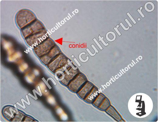 Alternarioza cartofului-Alternaria solani-microscop_3