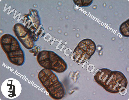 Patarea purpurie a cepei-Stemphylium vesicarium-conidia