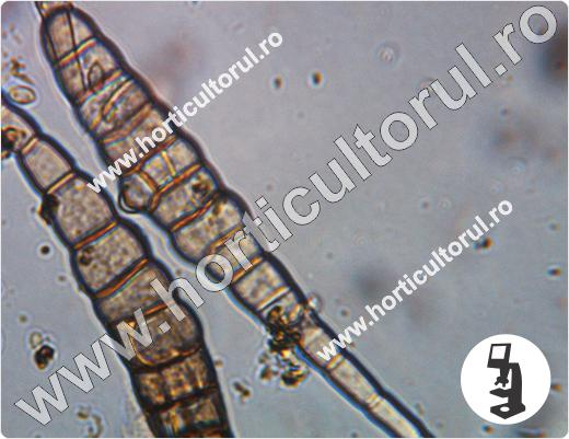 Alternarioza verzei (Alternaria brassicae)